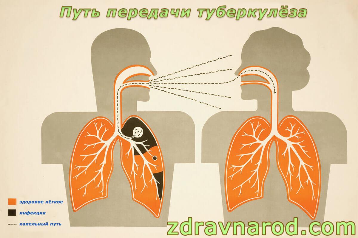 Путь передачи туберкулёза
