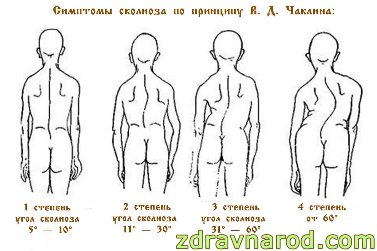 Симптомы сколиоза по принципу В. Д. Чаклина