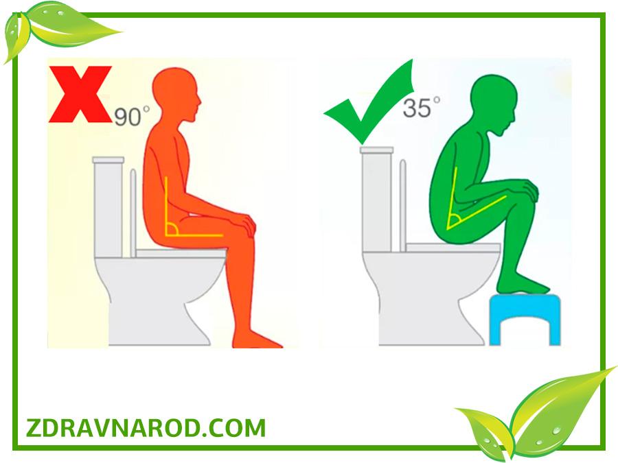Как правильно сидеть на унитазе