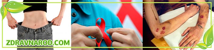 СПИД-ВИЧ