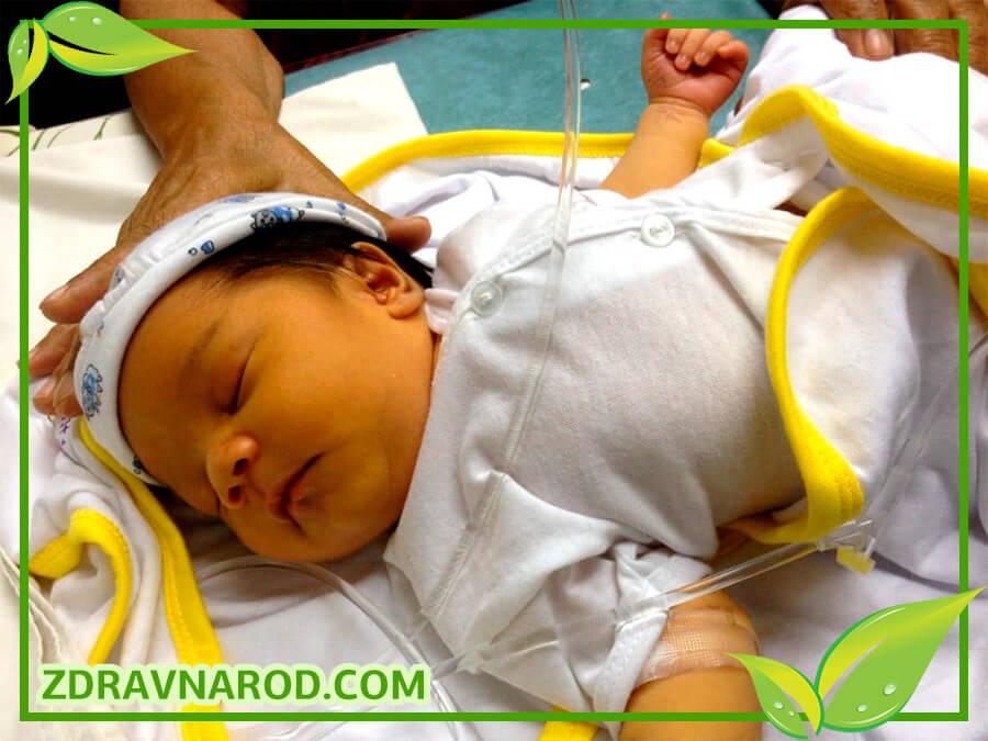 Желтуха у новорожденных-фото