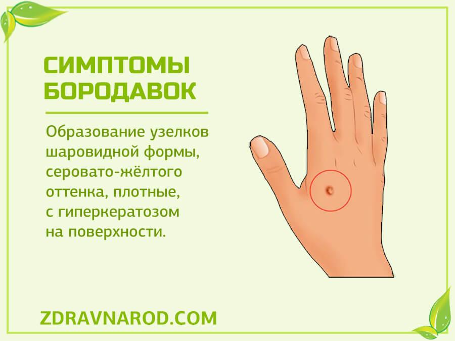 Симптомы бородавок - фото