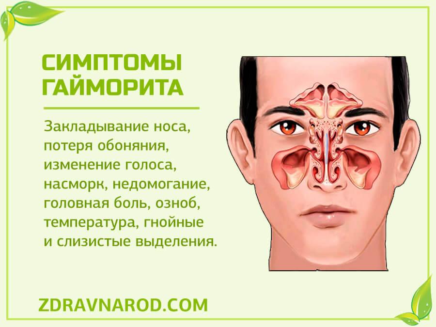 Симптомы гайморита - фото