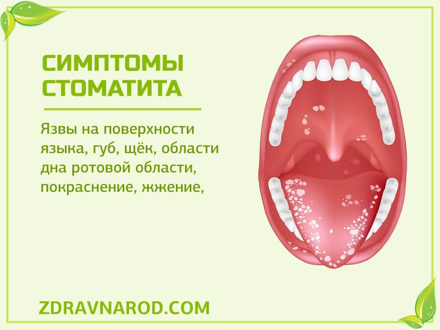 Симптомы стоматита - фото