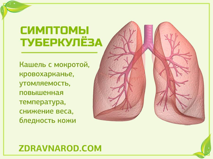 Симптомы туберкулёза - фото