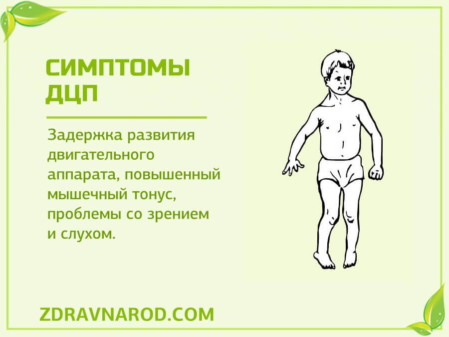 Симптомы ДЦП