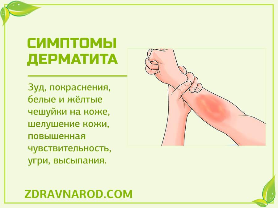 Симптомы дерматита-фото