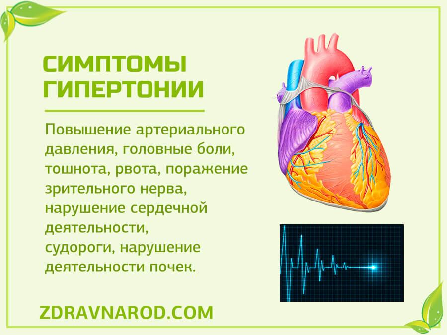 Симптомы гипертонии - фото