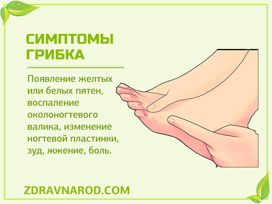 Симптомы грибка - фото