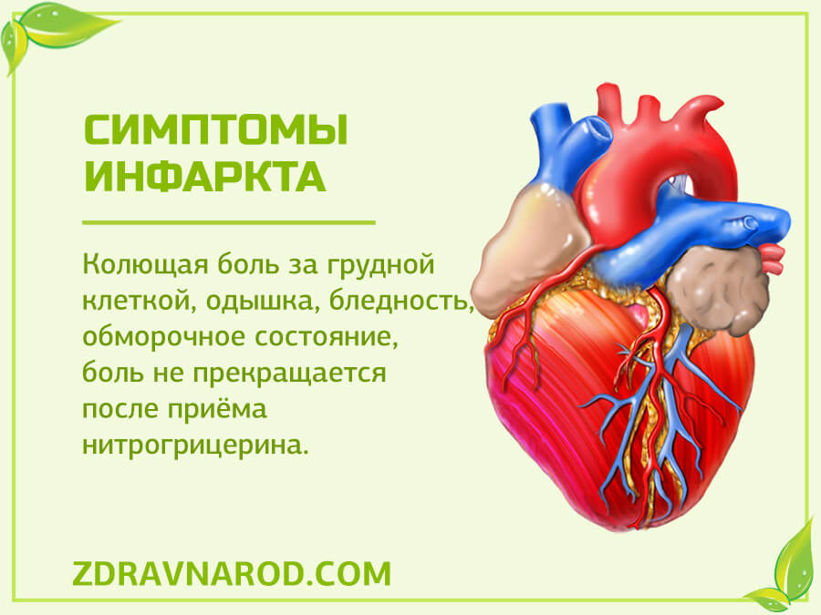 Симптомы инфаркта-фото
