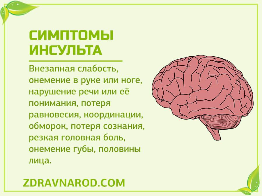 Симптомы инсульта-фото