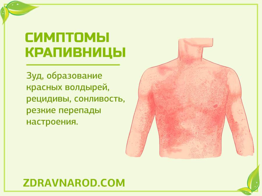 Симптомы крапивницы-фото