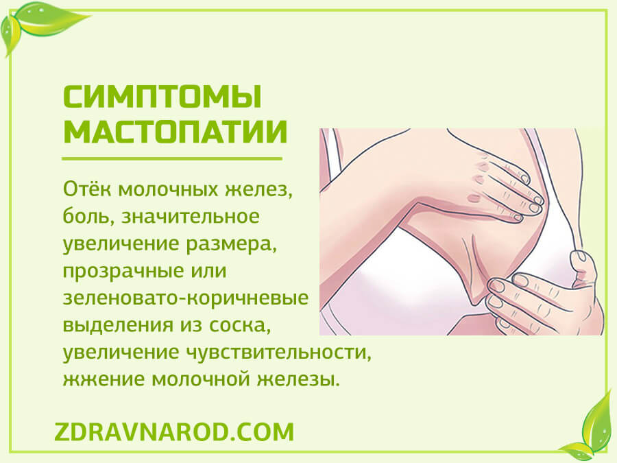 Симптомы мастопатии-фото