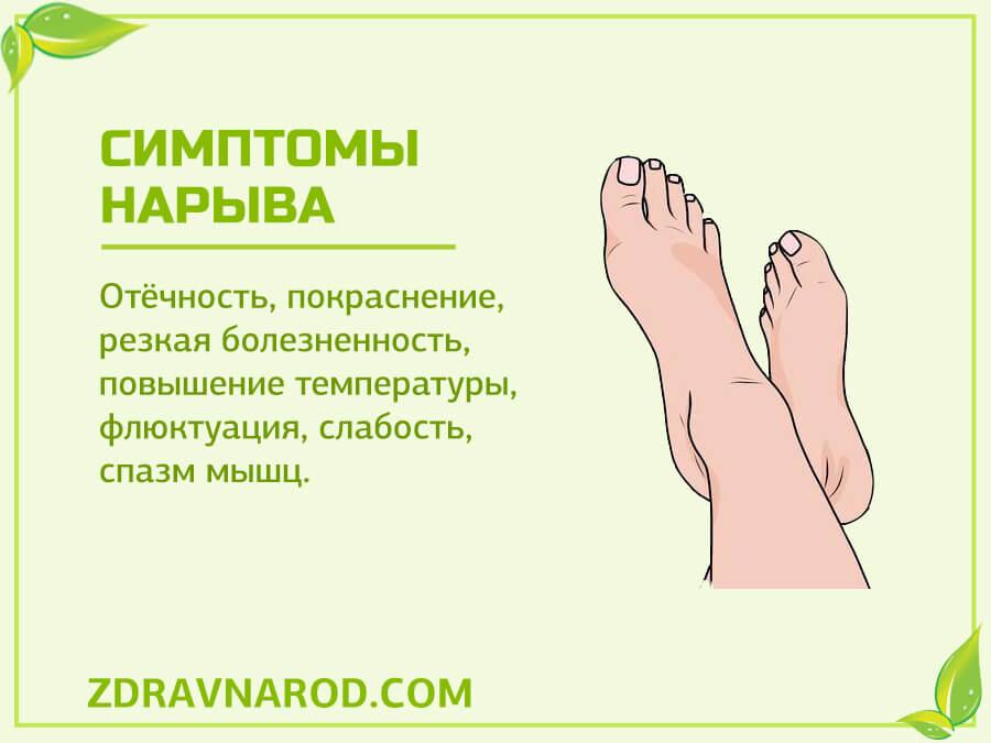 Симптомы нарыва-фото
