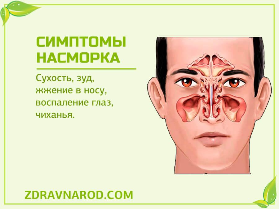 Симптомы насморка - фото