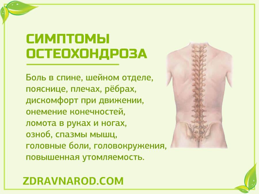 Симптомы остеохондроза-фото