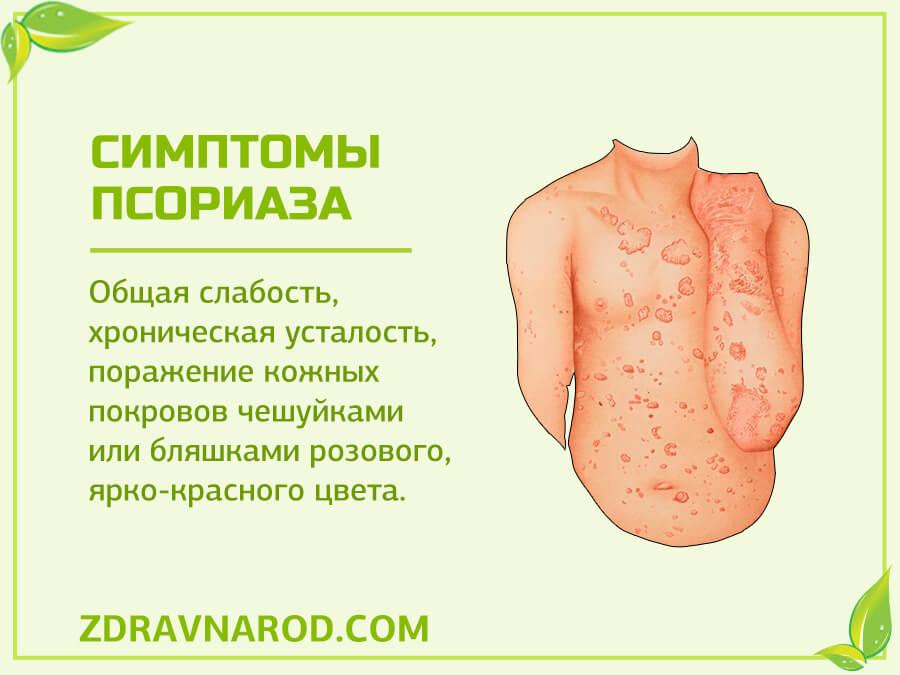Симптомы псориаза-фото