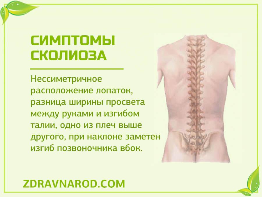Симптомы сколиоза-фото