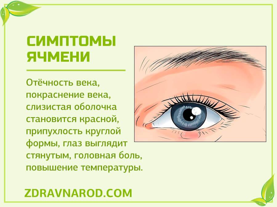 Симптомы ячменя-фото