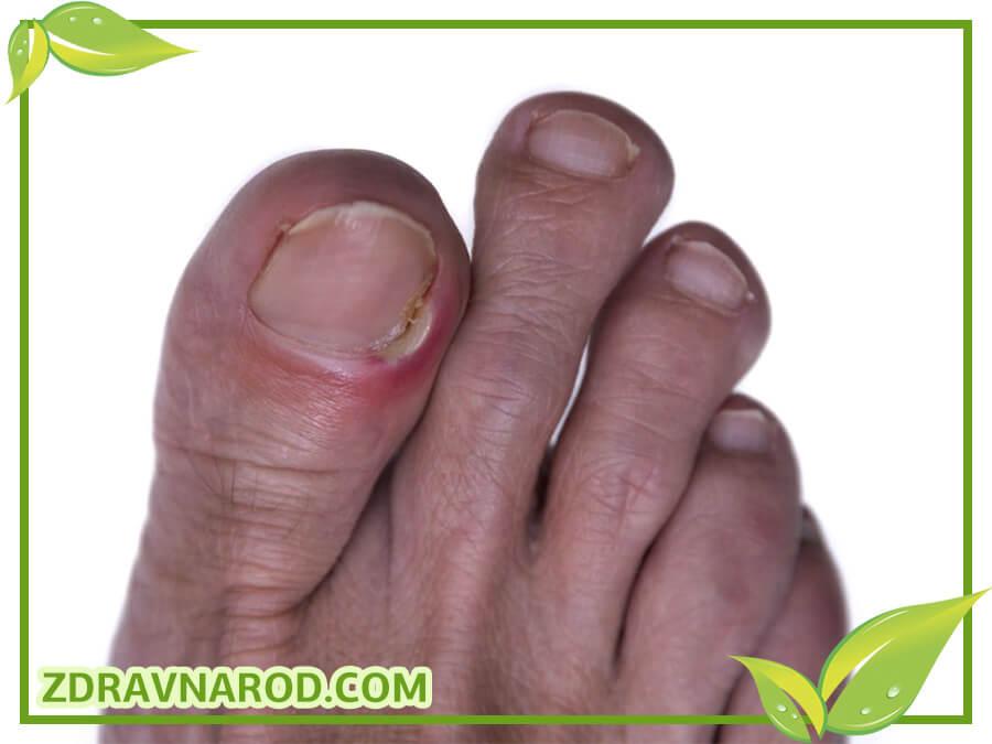 Вростание ногтя
